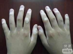 指端型白癜风能治好吗 治疗方法有哪些